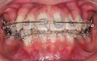 orthodontics_case_05.png