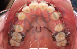 orthodontics_case_06.png