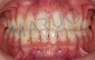 orthodontics_case_09.png