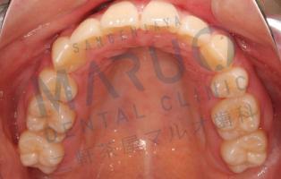 orthodontics_case_10.png