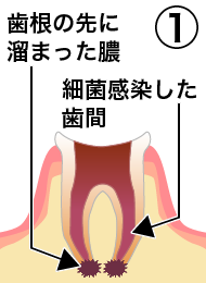root_canal_flow_1.png