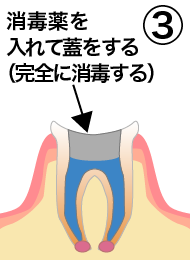 root_canal_flow_3.png