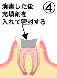 root_canal_flow_4.png