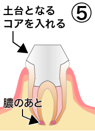 root_canal_flow_5.png