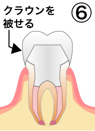 root_canal_flow_6.png