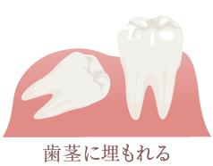 歯茎に埋もれる