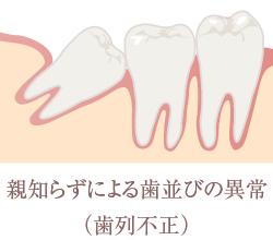 親知らずによる歯並びの異常(歯列不正)