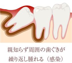 親知らず周囲の歯茎が繰り返し晴れる(感染)