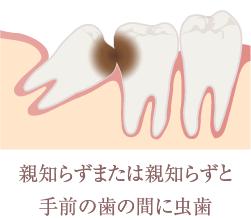 親知らずまたは親知らずと手前の歯の間に虫歯