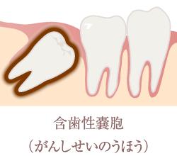 含歯性嚢胞(がんしせいのうほう)